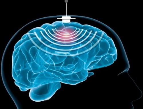 Utilizzo degli ultrasuoni nella malattia di Alzheimer